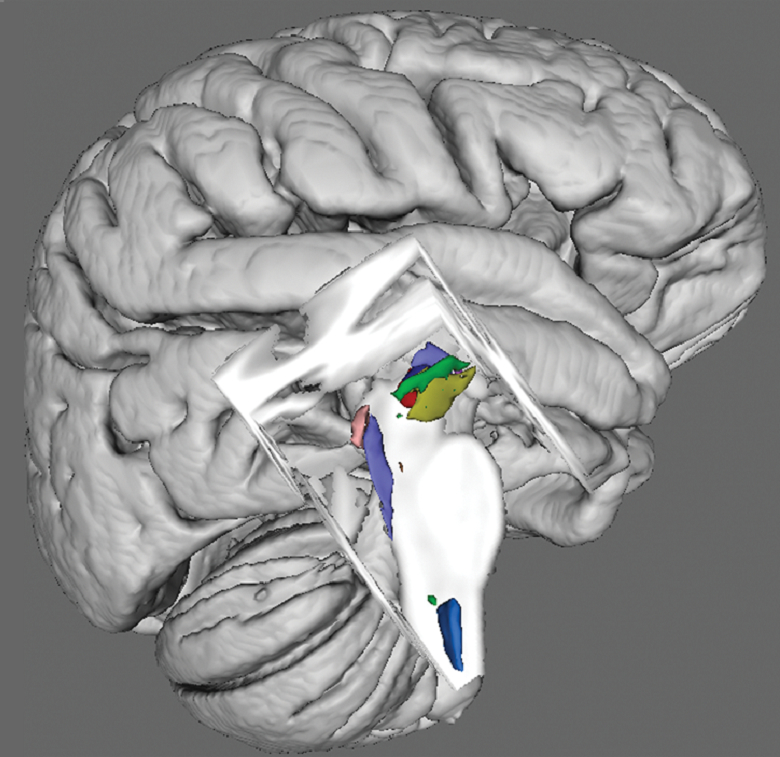 Brainstem Nuclei Atlas